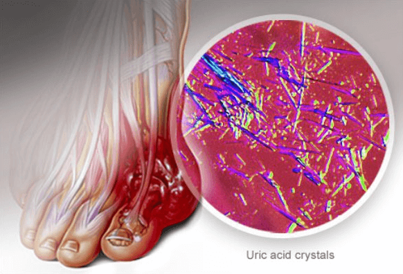 A view of uric acid crystals