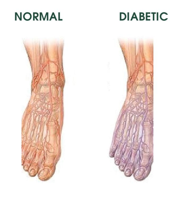 Blood vessel damage in the feet may cause tissue damage.