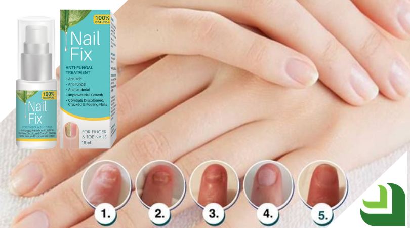 Nail Fix before, during and after